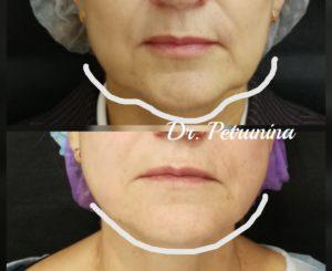 коррекция овала лица нитями до и после