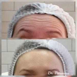выравнивание овала лица уколами ботокса до и после