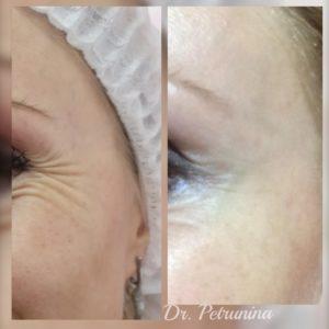 удаение морщин около глаз