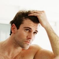 лечение выпадения волос у мужчин