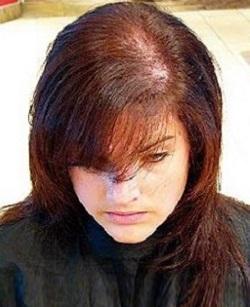 до лечения волос